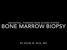 ALMOST PAINLESS BONE MARROW BIOPSY WITH ONCONTROL POWERED BONE ACCESS SYSTEM